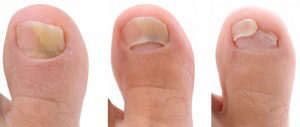 Toenail Fungus Treament Review