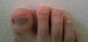 How To Get Rid of Toenail Fungus Fast